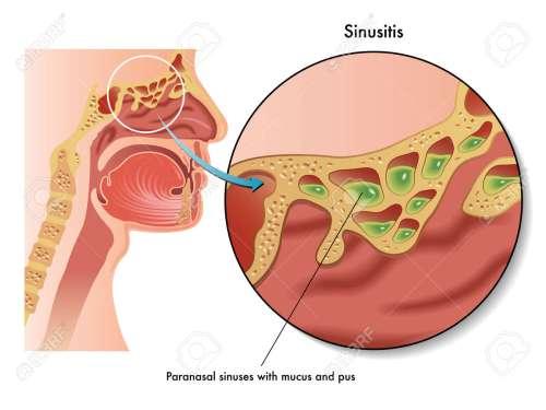 small resolution of  24539456 sinusitis