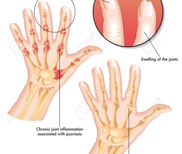 Psoriatic Arthritis Stock Vector