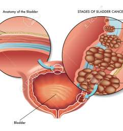 bad bladder cancer stock vector 45646006 [ 1300 x 764 Pixel ]