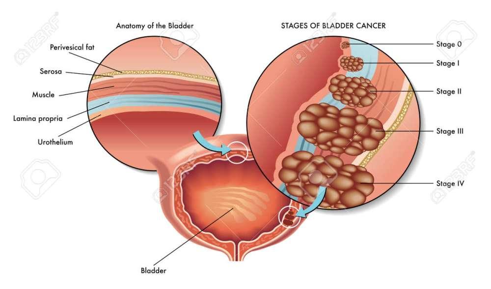 medium resolution of bad bladder cancer stock vector 45646006