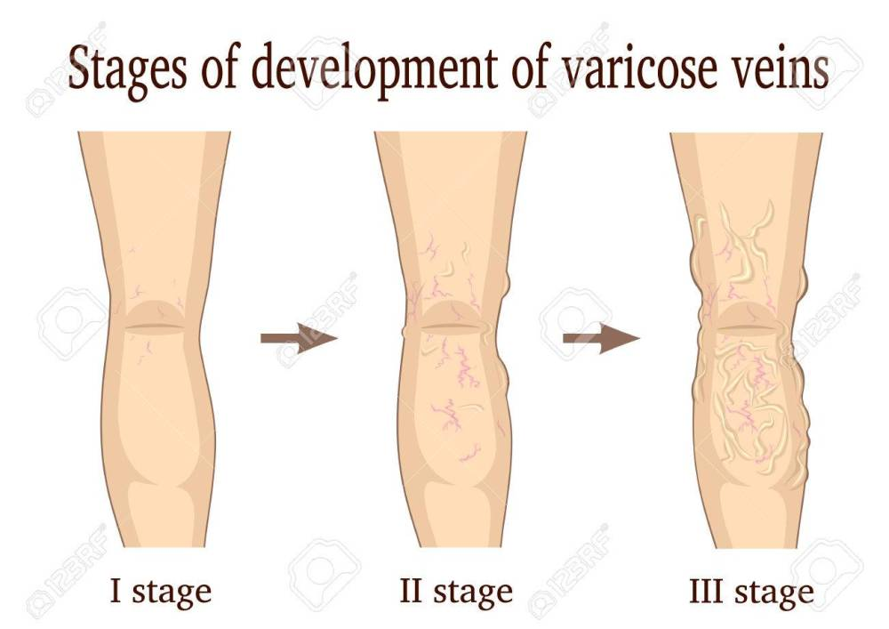 medium resolution of three stages of the development of varicose veins isolated on white background stock vector 64713653