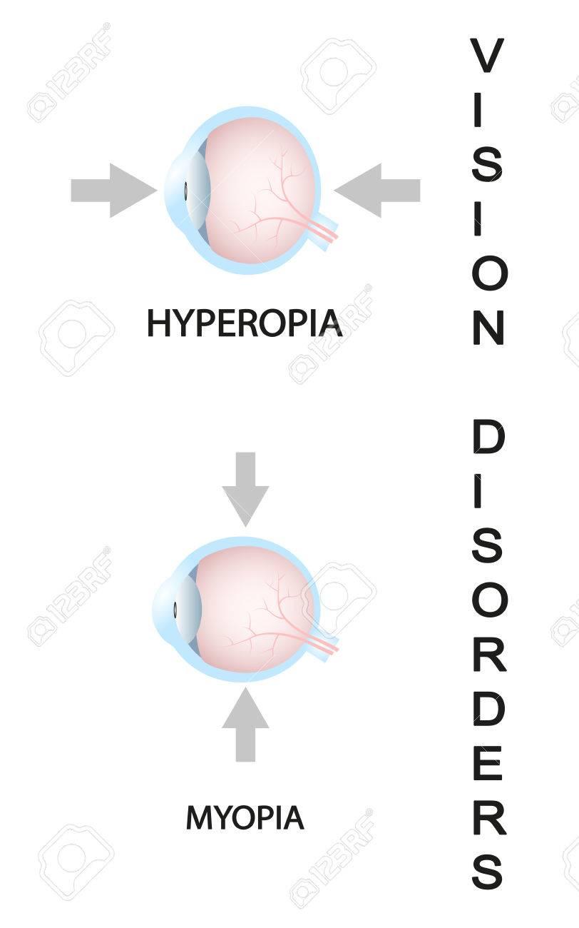 medium resolution of myopia and myopia corrected by a minus lens eye vision disorder stock vector