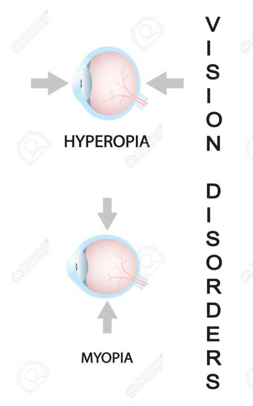 small resolution of myopia and myopia corrected by a minus lens eye vision disorder stock vector