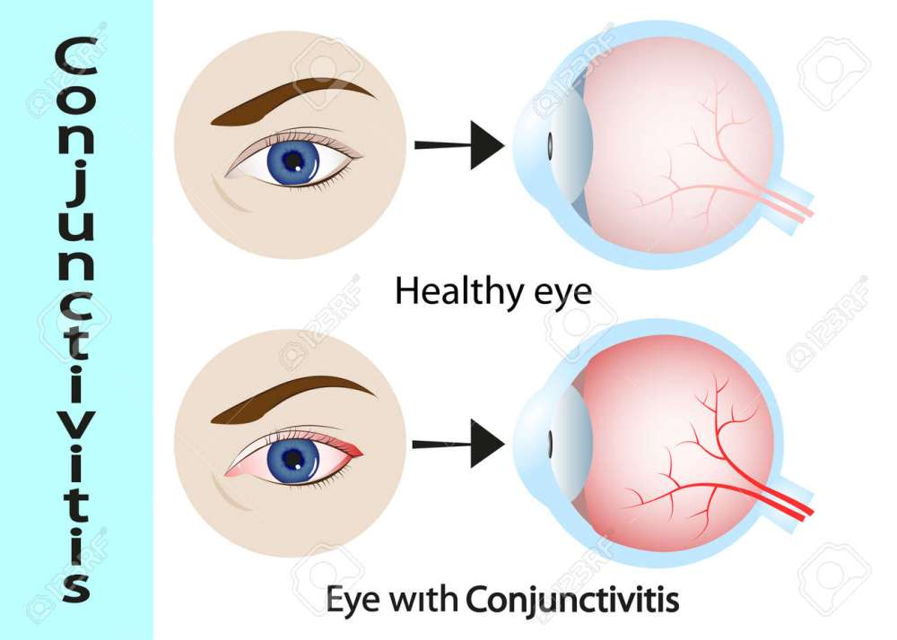 medium resolution of conjunctivitis pink eye with inflammation external view and