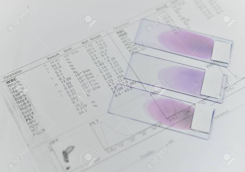 medium resolution of blood test for complete blood count cbc medical science background concept stock photo