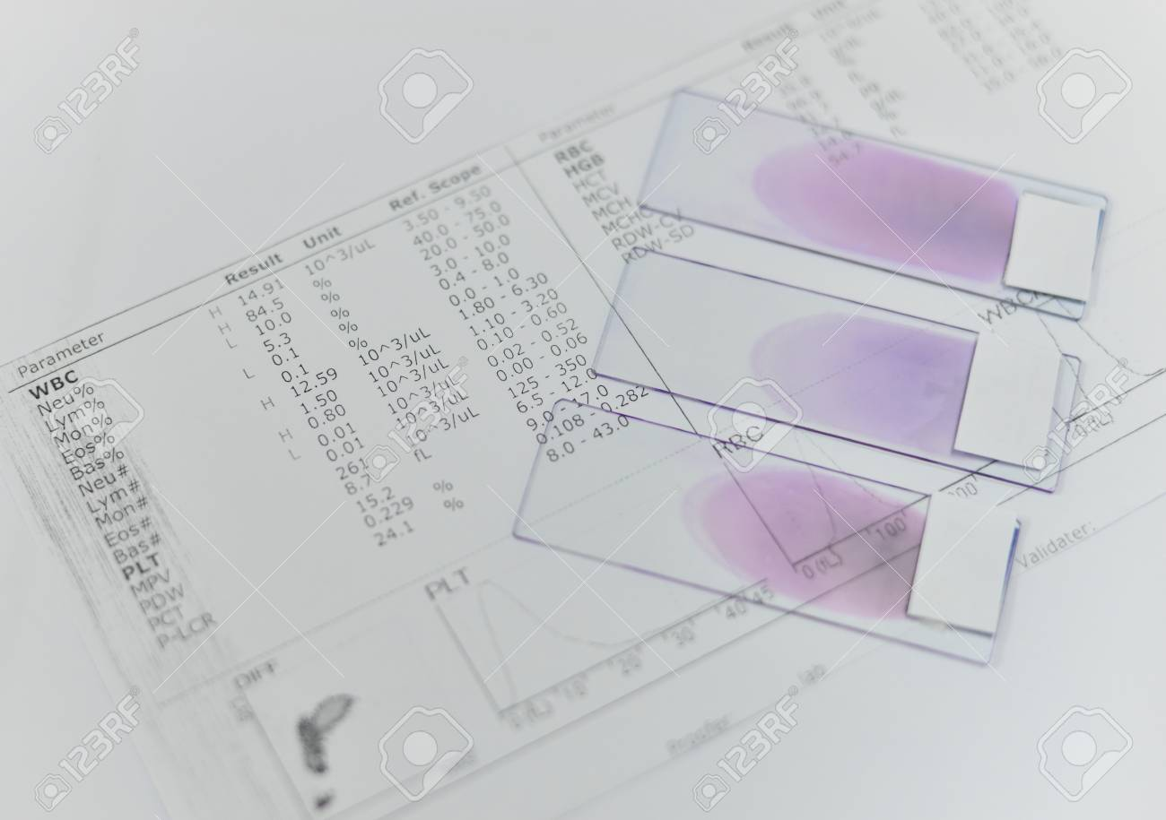 hight resolution of blood test for complete blood count cbc medical science background concept stock photo