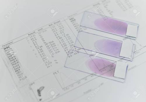 small resolution of blood test for complete blood count cbc medical science background concept stock photo