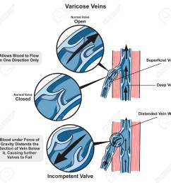 varicose veins infographic diagram showing the normal valve open and closed and compare it to incompetent [ 1300 x 1264 Pixel ]