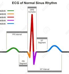 ecg of normal sinus rhythm infographic diagram showing normal heart beat wave including intervals segments and [ 1300 x 1158 Pixel ]