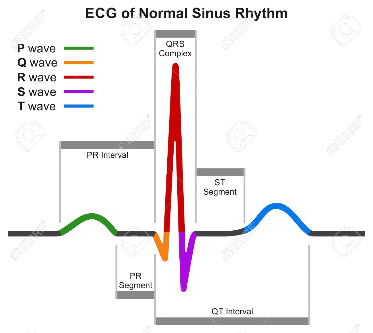 hight resolution of ecg of normal sinus rhythm infographic diagram showing normal heart beat wave including intervals segments and