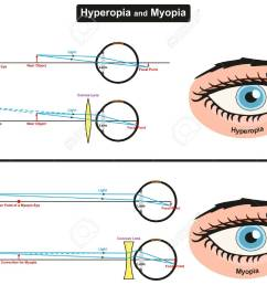 hyperopia and myopia infographic diagram showing comparison between them including far and near object focal points [ 1300 x 1028 Pixel ]