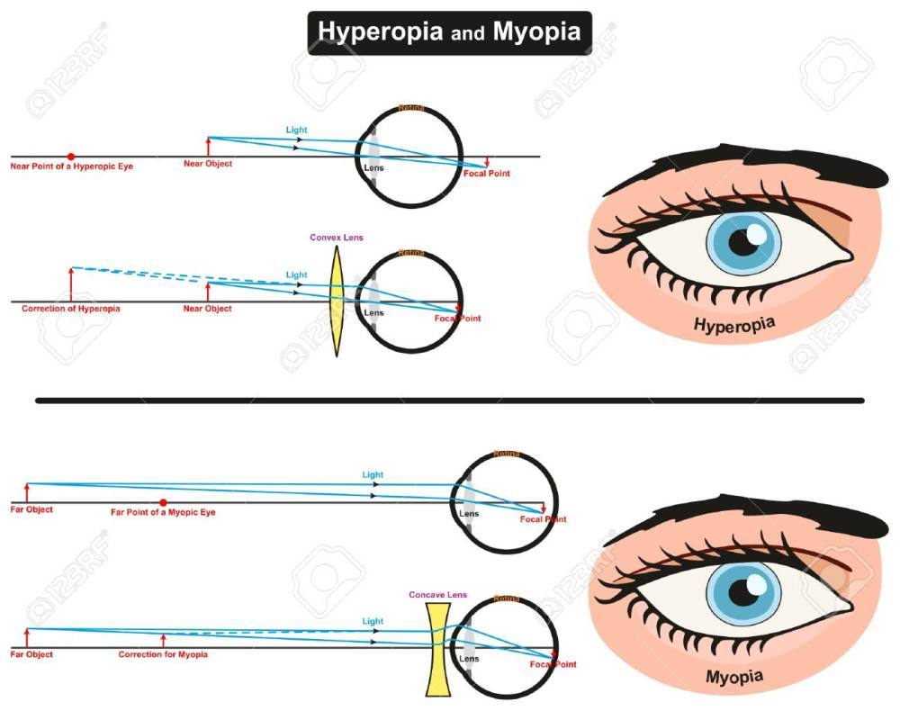 medium resolution of hyperopia and myopia infographic diagram showing comparison between them including far and near object focal points