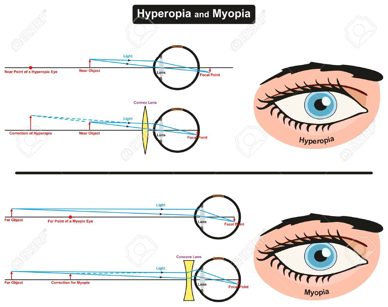 hight resolution of hyperopia and myopia infographic diagram showing comparison between them including far and near object focal points