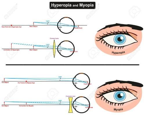 small resolution of hyperopia and myopia infographic diagram showing comparison between them including far and near object focal points