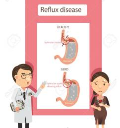 doctor explained to women with heartburn diagram showing gastric reflux infographic vector illustration  [ 919 x 1300 Pixel ]