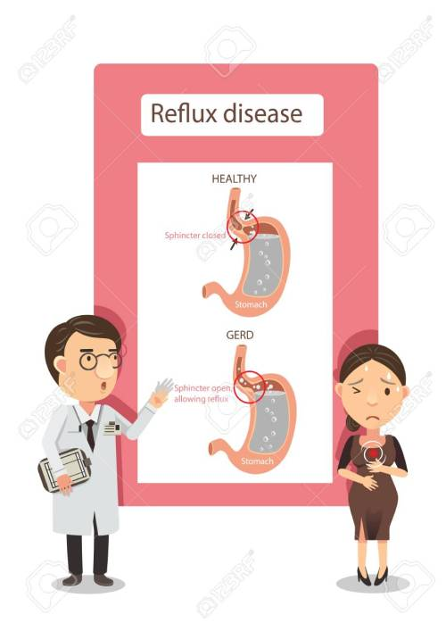 small resolution of doctor explained to women with heartburn diagram showing gastric reflux infographic vector illustration