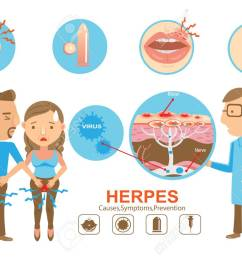 doctor holding diagram herpes on the lips and genitals of the young woman and young [ 1300 x 919 Pixel ]