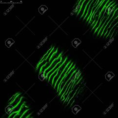 Cardiac Muscle Labeled Diagram Mortise Lock Parts With Green Fluorescent Dye Stock Photo 54217990