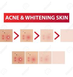 acne skin to clear diagram and whitening tones vector illustration stock vector 97093133 [ 1300 x 1300 Pixel ]