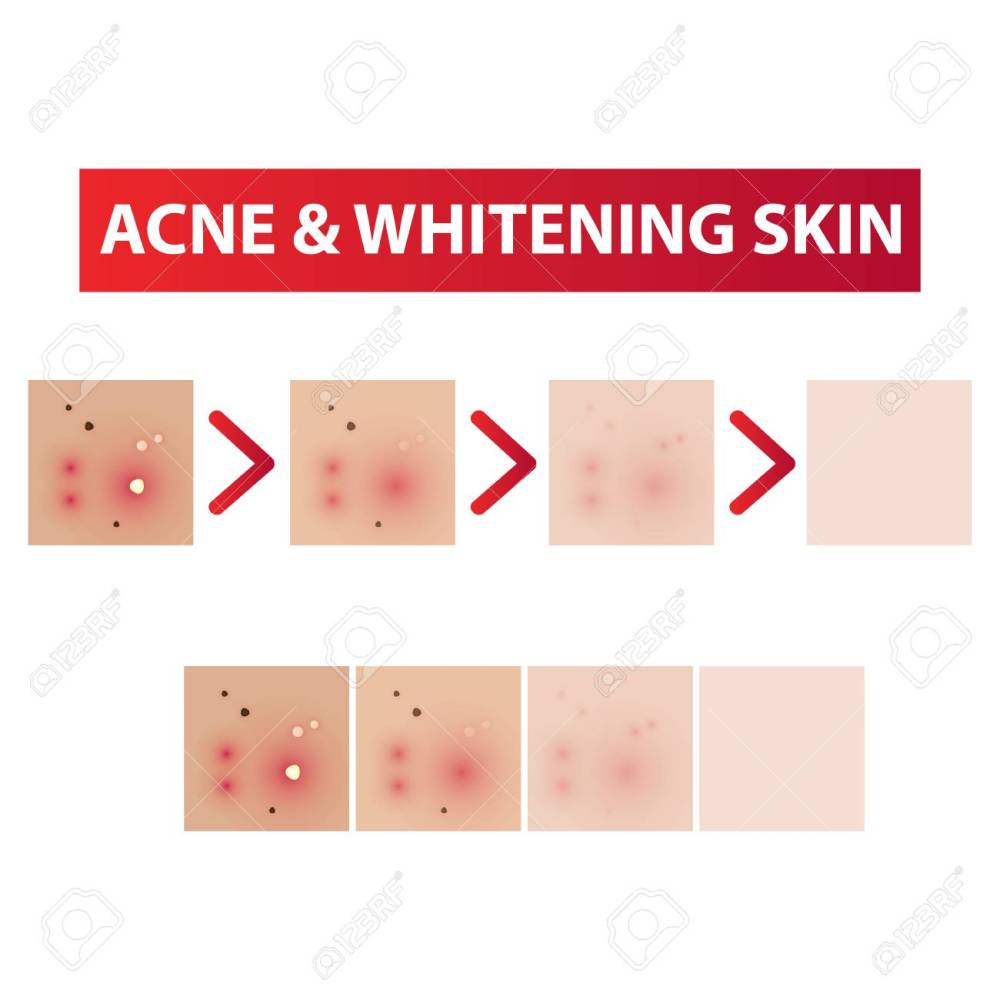 medium resolution of acne skin to clear diagram and whitening tones vector illustration stock vector 97093133