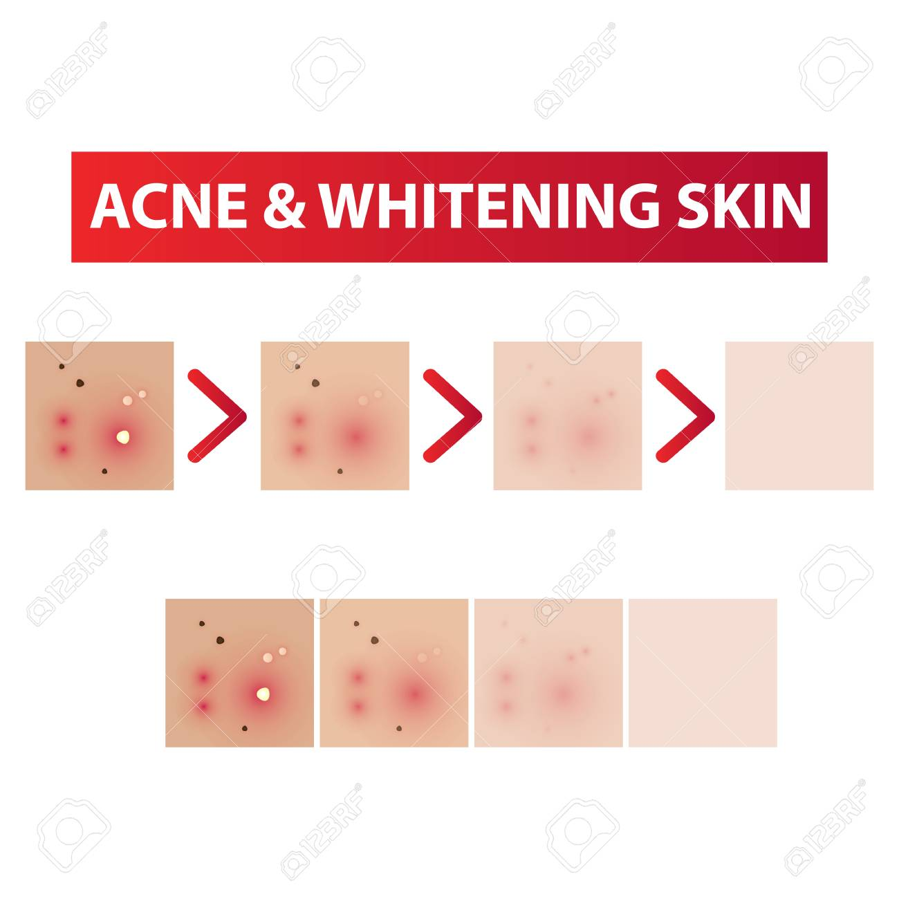 hight resolution of acne skin to clear diagram and whitening tones vector illustration stock vector 97093133
