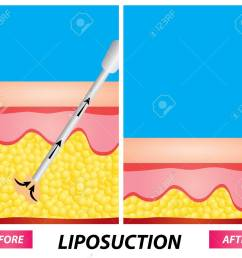 liposuction fat surgery diagram before and after vector illustration stock vector 100735731 [ 1300 x 1153 Pixel ]