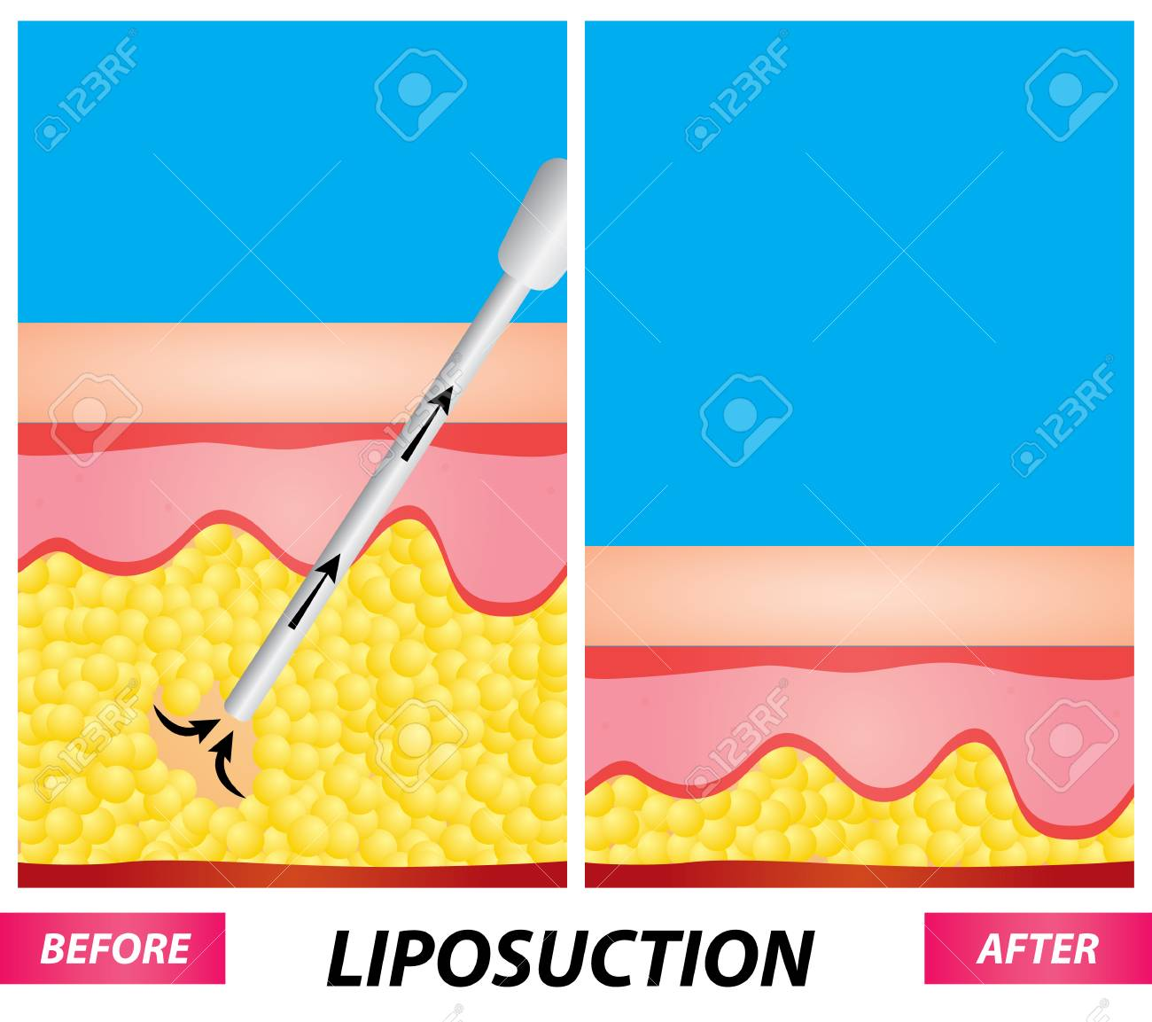 hight resolution of liposuction fat surgery diagram before and after vector illustration stock vector 100735731