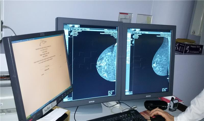 Petsto ljudi nije bilo na zakazanoj kolonoskopiji, a žene na preventivnu mamografiju nisu mogle dva mjeseca