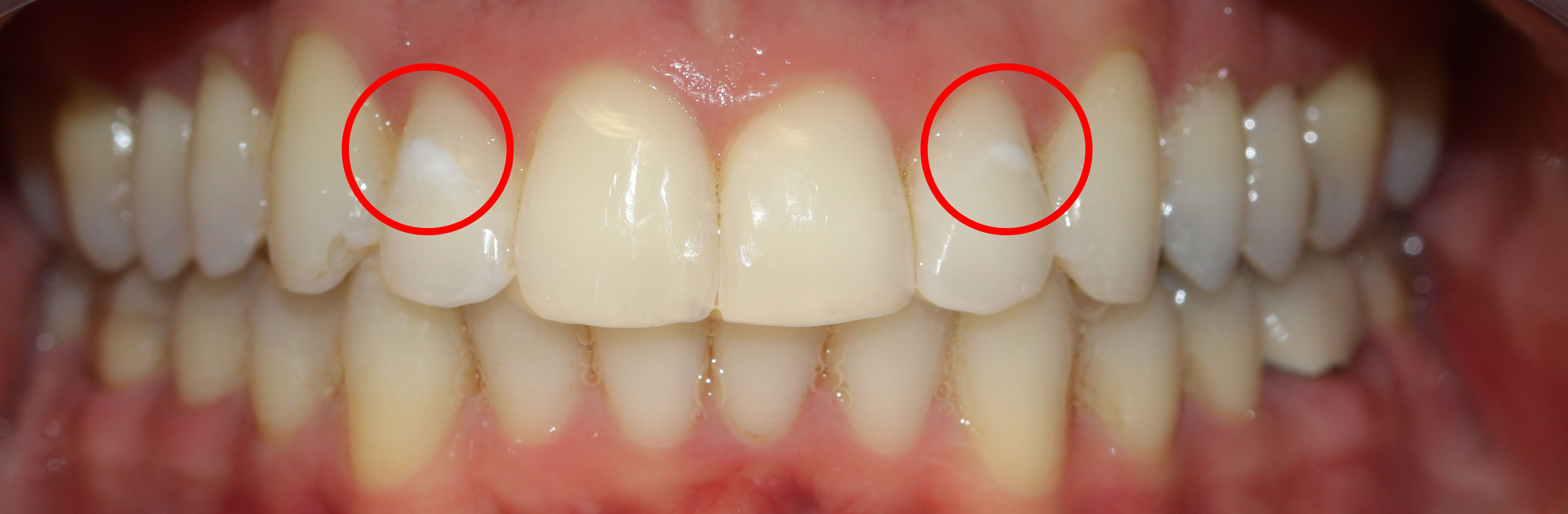 Before: Close up of top and bottom teeth showing demineralization