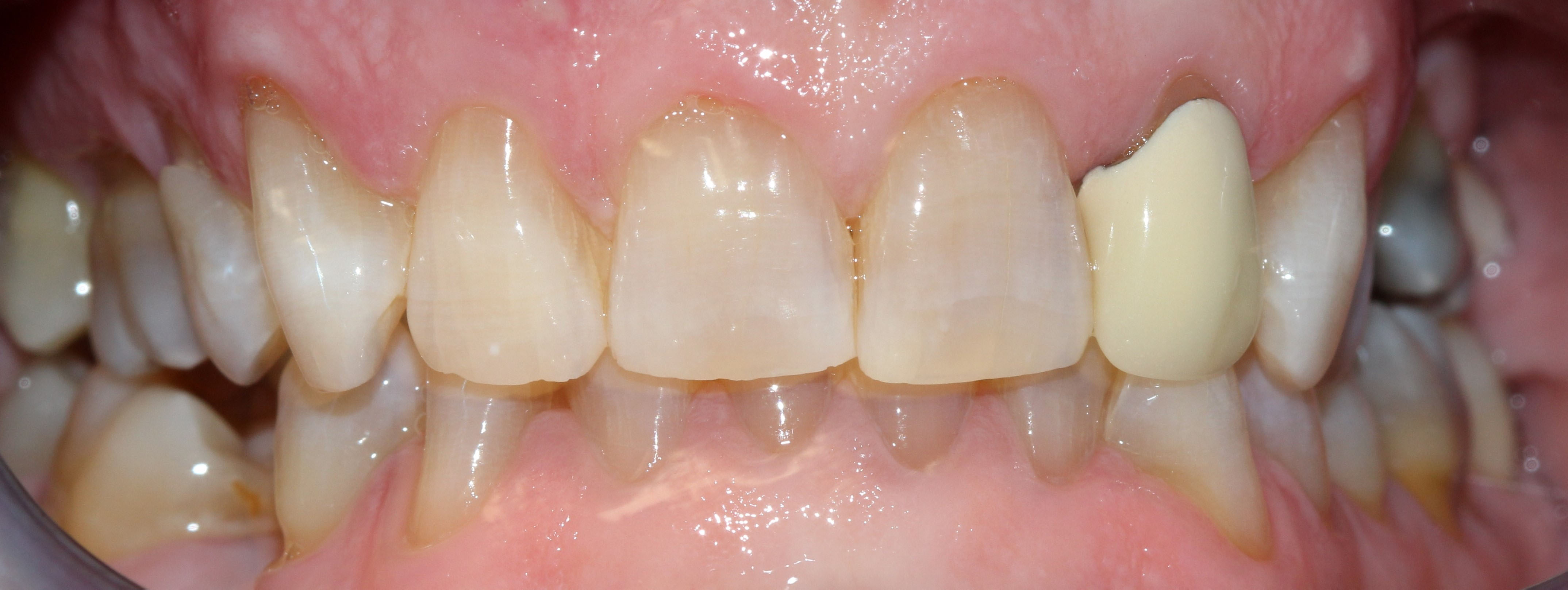 After picture, showing whiter teeth.