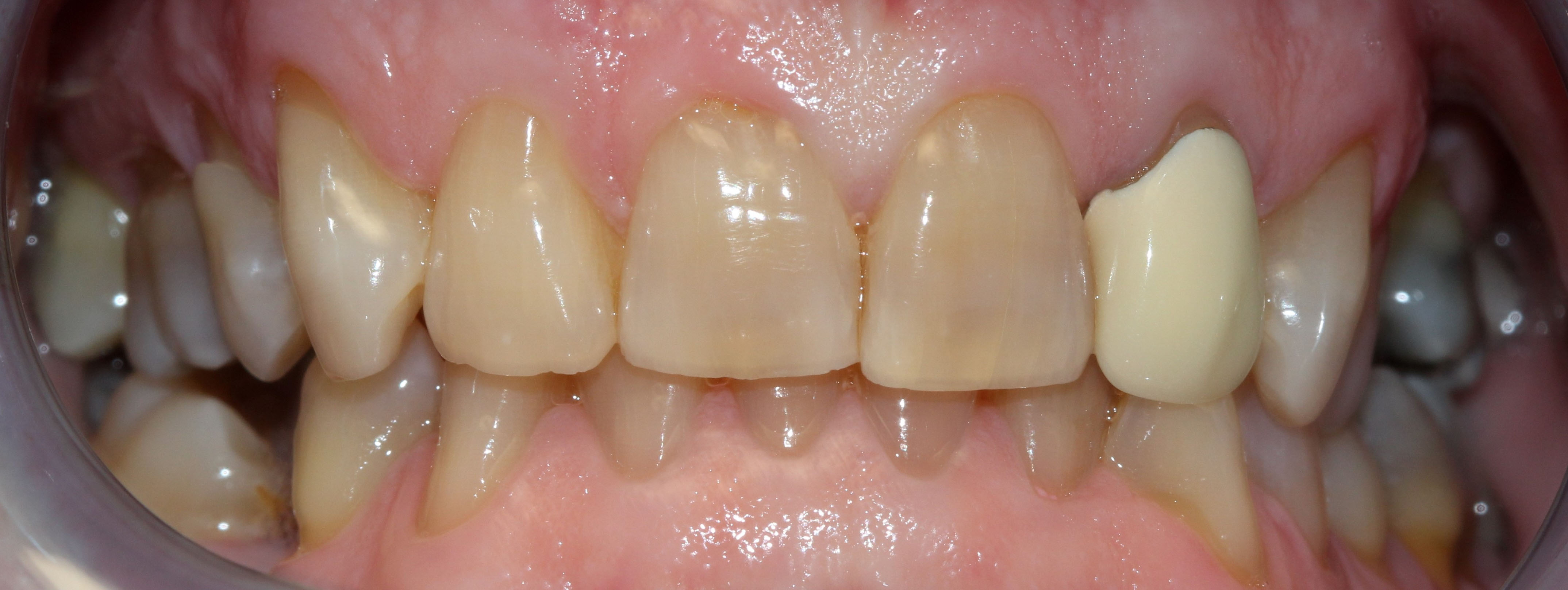 Before picture of teeth, looking slightly discolored.