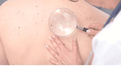 Photo of Liga Acadêmica de Dermatologia promove campanha de prevenção ao câncer de pele