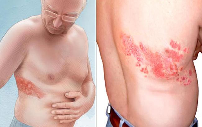 """Los síntomas del herpes zóster """"la culebrilla"""""""