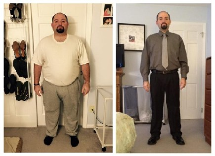 Adam Reich before and after gastric sleeve weight loss surgery at Prime Surgicare, New Jersey.