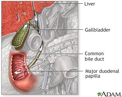 Bile duct obstruction