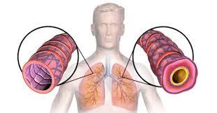 Astma i prirodno lecenje