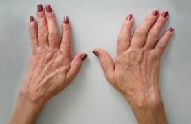 Prirodno lecenje artritisa