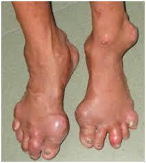 Giht ( uricki artritis)