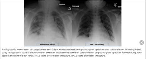 Xray of lung before and after red light therapy