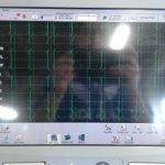 Philips PageWriter Touch 12-Channel EKG Patient Monitor Without Cart – For parts or not working