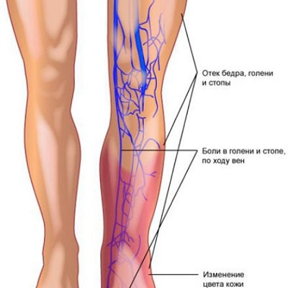 What is a blood clot in the leg  Foot clots - causes