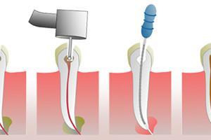 Что такое канал в стоматологии. Как чистят зубные корневые каналы: обработка, обтурация и другие основы эндодонтического лечения