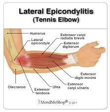 Lateral Epicondylitis - ProActive Physical Therapy ...