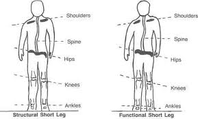 Leg Length Differences Affecting Athletic Performance and