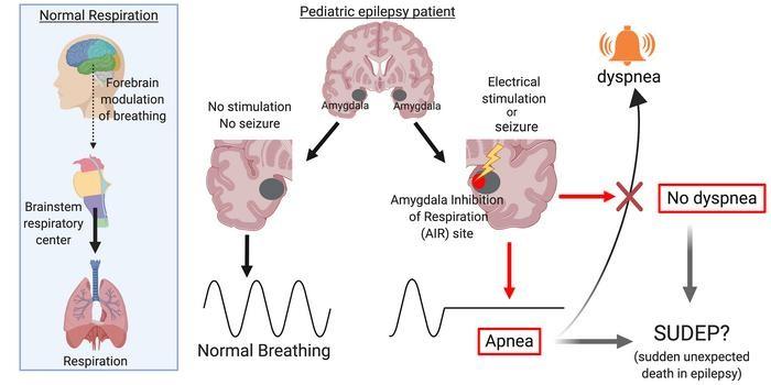Синдром внезапной смерти при эпилепсии