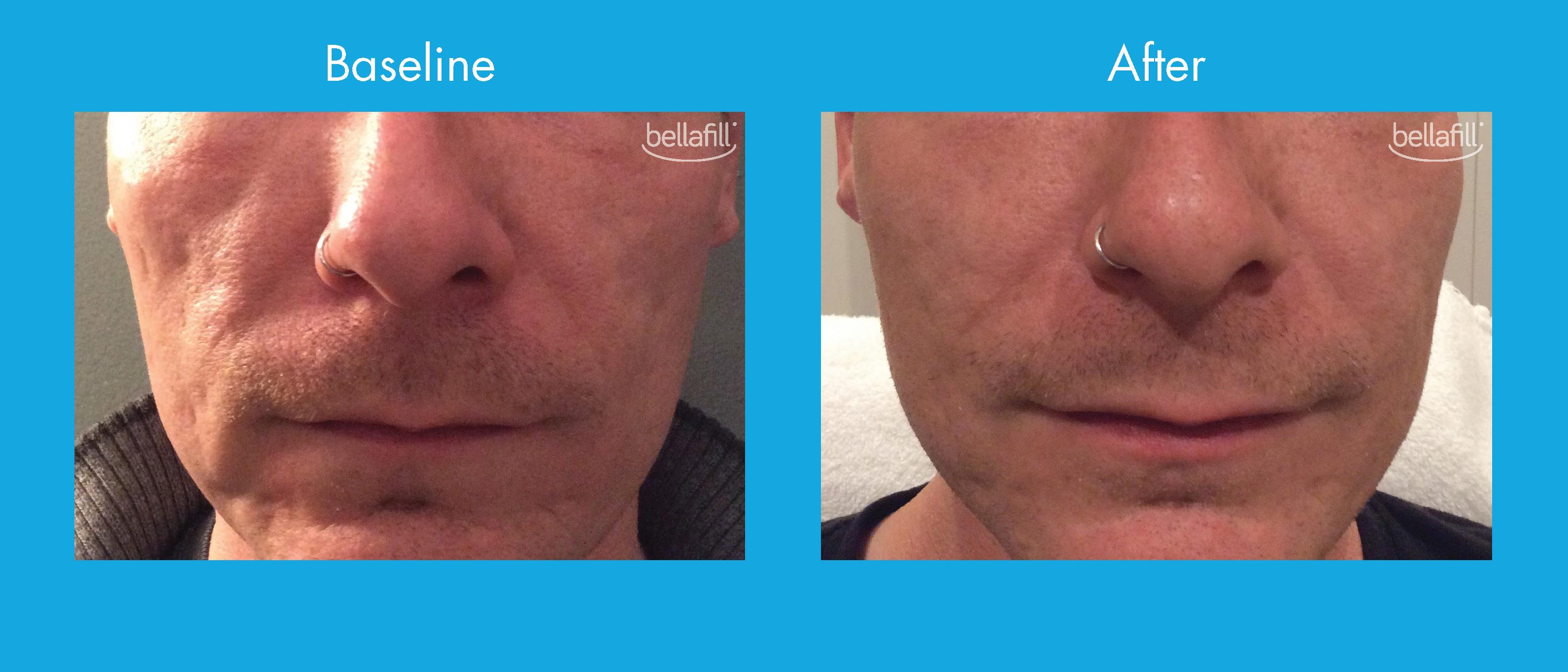 Bellafill for Lasting Acne Scar Treatment | Ann Arbor, MI