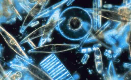 Diatomeas microscopio electronico