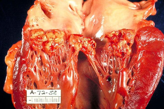 bacterias en los dientes afectan al corazon