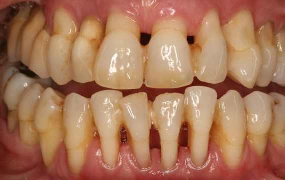 periodontititis