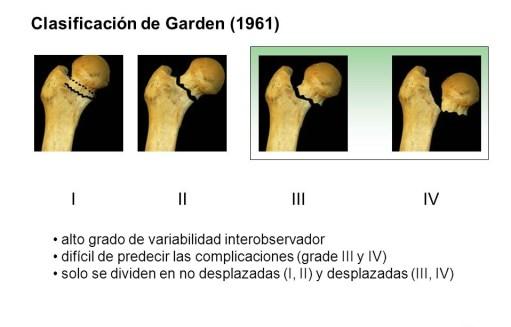 Clasificación según Garden